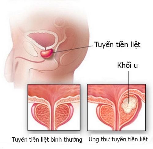 benh-ung-thu-1