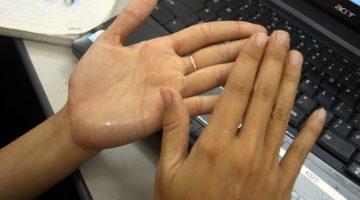 Chứng ra mồ hôi tay và những điều bạn nên biết