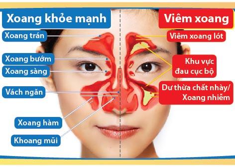 Cảnh báo bệnh viêm xoang có thể gây mù mắt