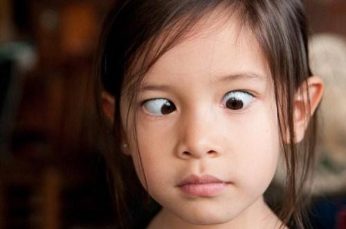 Mắt lé là nguyên nhân gây nhược thị ở trẻ em