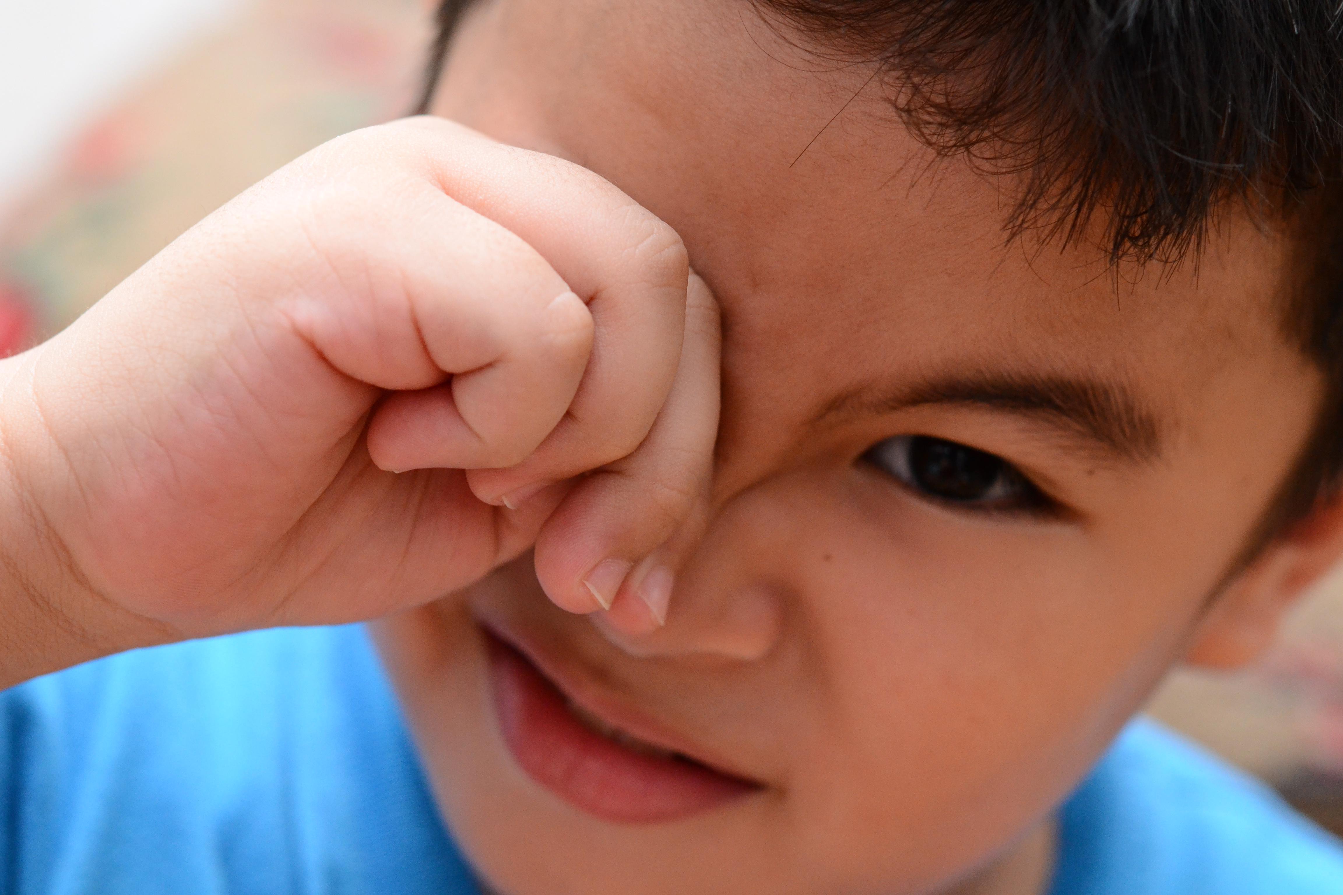 Dấu hiệu bị cận nhẹ sớm ở trẻ bạn không nên bỏ qua