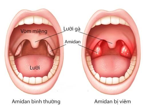 Kiến thức không thể bỏ qua về bệnh viêm amidan